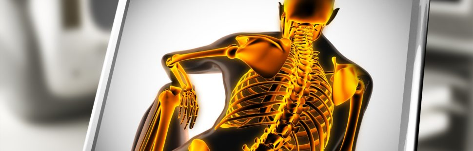 spinal cord stimulator spring hill brooksville