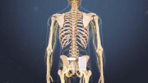 spinal cord stimulator spring hill